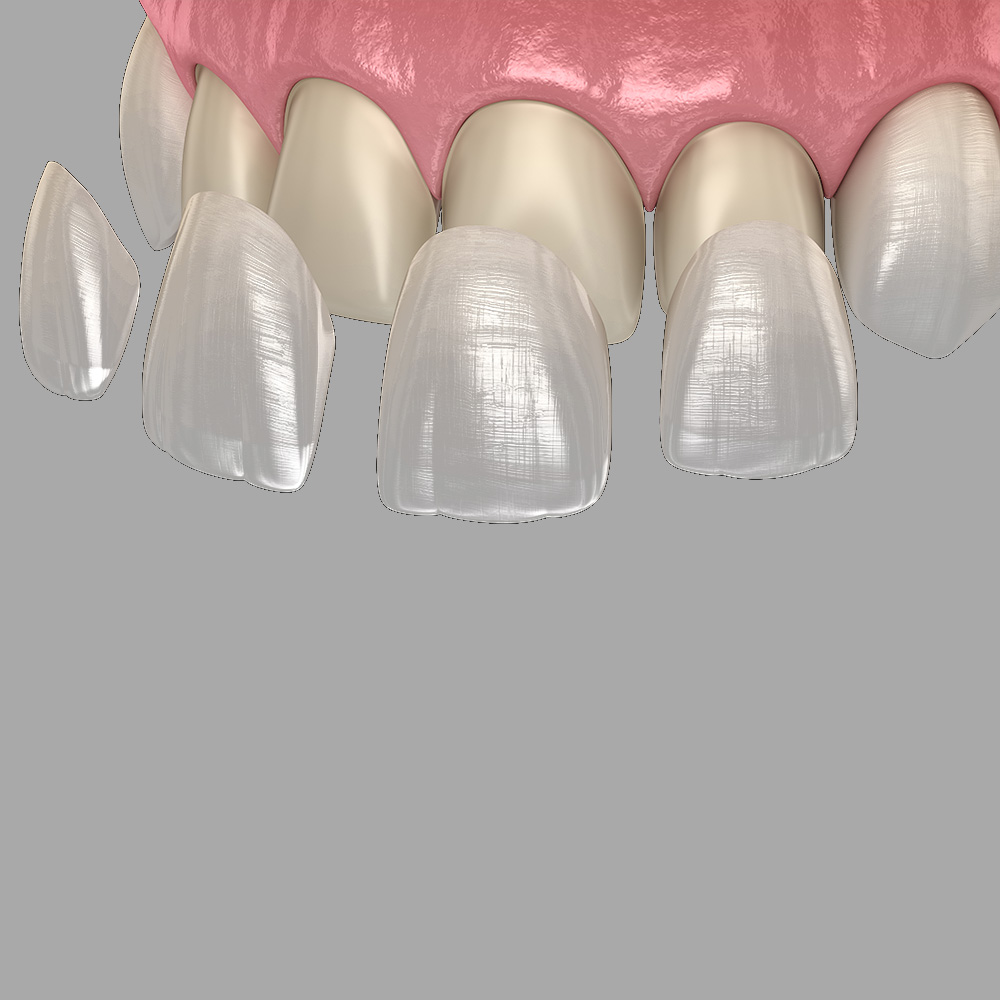 Was grau zahn tun wird Zahn wackelt: